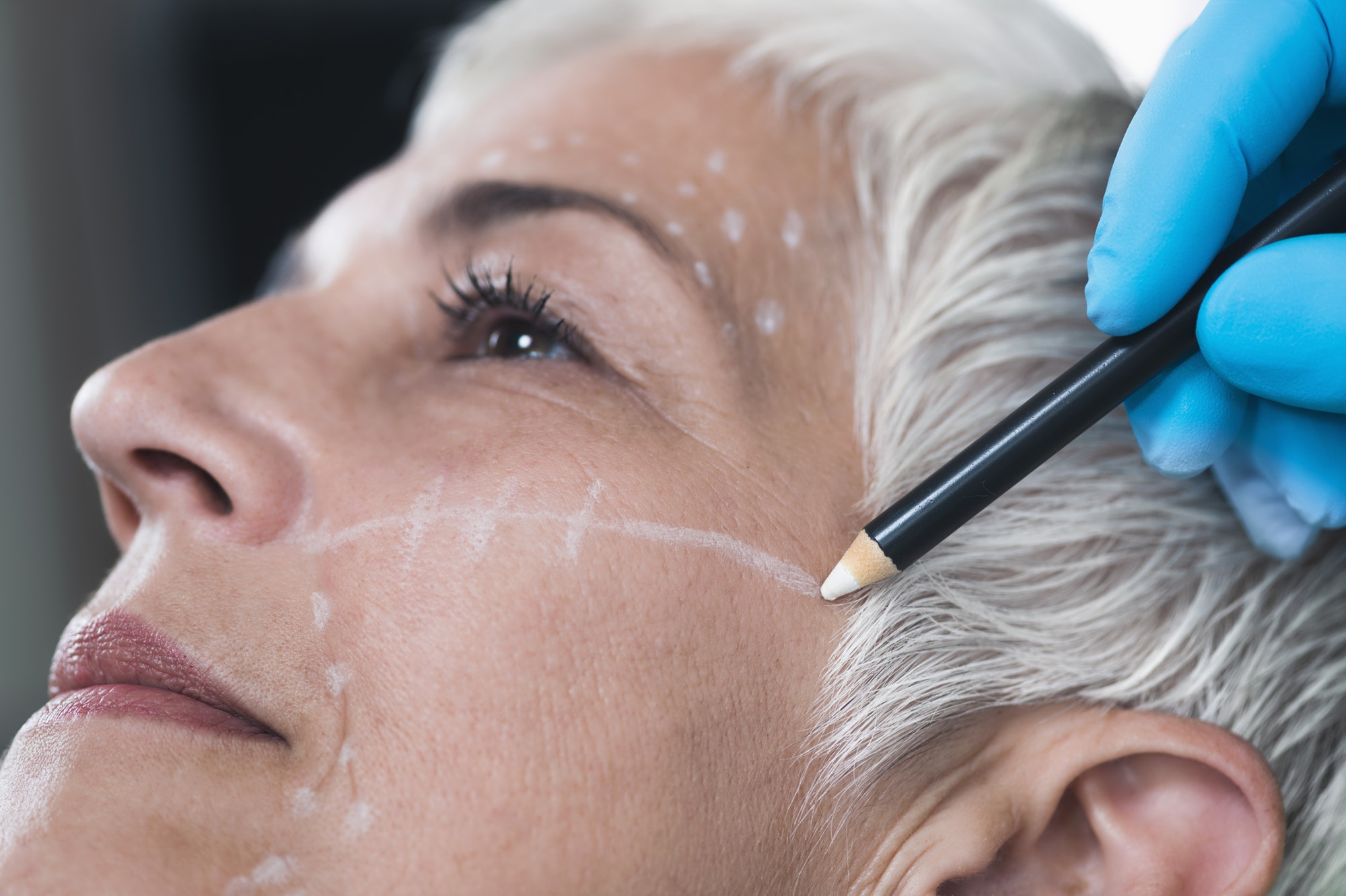 Anti-Aging Concept. Doctor's Hand Preparing Women's Face for Cos